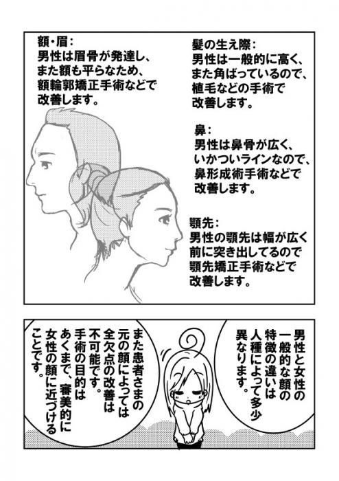 006FFS(顔の女性化手術)ってどんなことするの?(2)