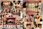 素人歯列矯正 顔面デストロイ/矯正中のリョウコちゃん