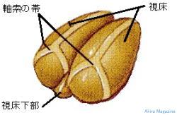 2 Diencephalon001