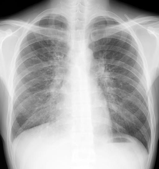 109回歯科國試:胸部X線の読影 (109B29) - 醫療関係資格試験マニア