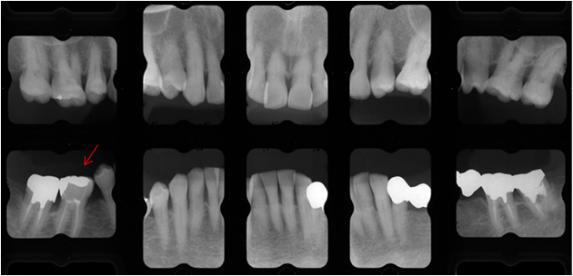 なえぼ ほのぼの ブログ   歯の保存治療(穿孔)・・・長期保存は困難と思われたKさんの治療例