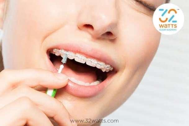 Modern mettallic braces types