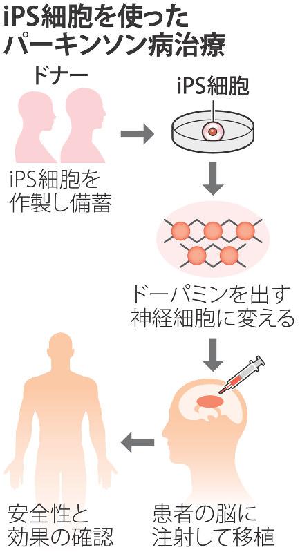 iPS細胞を使ったパーキンソン病治療