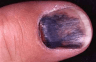 A fully clotted nail