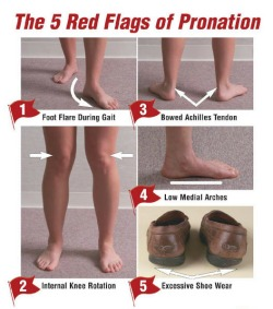 5 Red Flags of Pronation