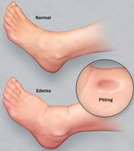 Common Causes of Swollen Feet and Ankles - Almawi Limited ...Preeclampsia Swelling Vs Normal Swelling