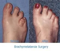 Before and After lengthening surgey