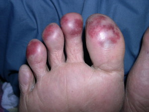 Discolouration of the tips of the toes