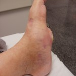 Charcot Foot with evidence of a deformity