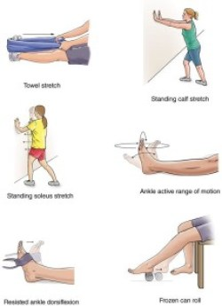 Foot  stretches