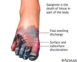 Foot with gangrene