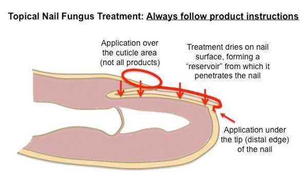Fungal Nail Treatment Diagram