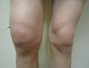 Swollen Knee Vs Normal