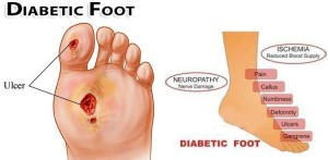 Diabetic Ulcer and Neuropathy