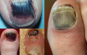 Progressive stages of the melanoma
