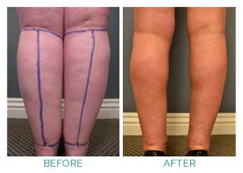 Suffering with Lipoedema - Almawi Limited The Holistic Clinic