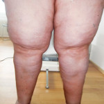 Lipoedema of the thighs