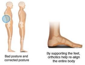 Orthotics and back pain