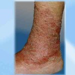 Dry  Scaly Version of Varicose Eczema