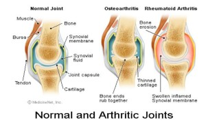 Normal VS Arthritic Joints