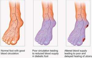 Circulation of the Feet