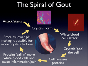 The Spiral of Gout