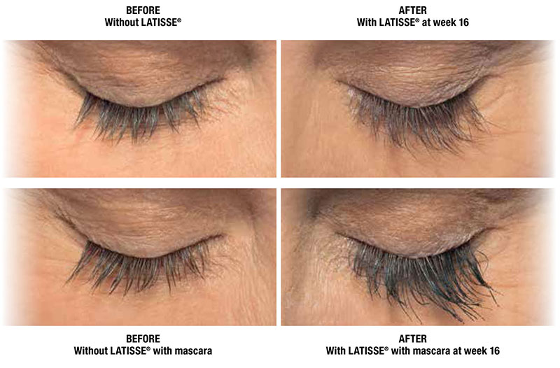 How To Spot Lash Extensions Falsies Latisse Other Enhanced