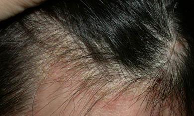 也有頭皮脂漏性皮膚炎困擾?   艾瑪絲 AROMASE 官方網站