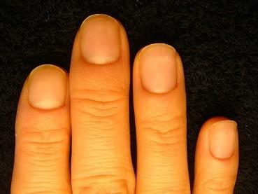 深爪矯正の変化画像
