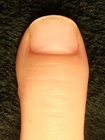 深爪自立矯正の結果 爪の変化画像