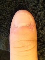 深爪矯正の変化が分かる爪の変化画像
