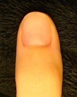 深爪自立矯正の結果 バハネイルのカイナメソッド