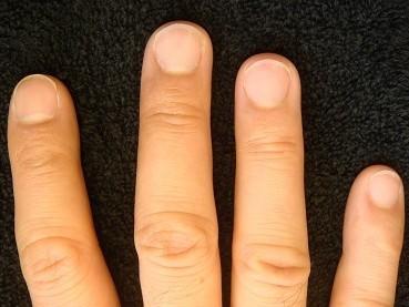 男性の深爪自立矯正の変化画像