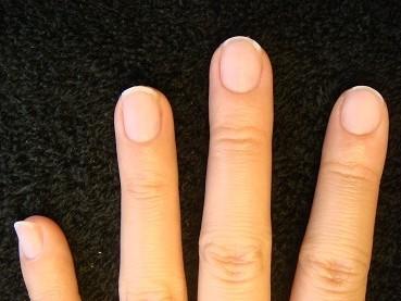 爪の縦の長さが倍になるカイナメソッドの深爪自立矯正 変化画像