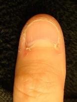 人前に出しても恥ずかしくない指先に変化 深爪自立矯正変化画像