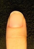 深爪を治したら指先もスラッと綺麗になった深爪矯正変化画像