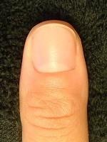 爪の脇をむしる癖の深爪から美爪へ