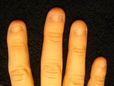 小さい爪が倍以上の長さになった深爪矯正の変化画像