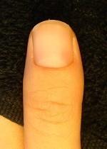 小さい爪が倍以上の長さになった深爪自立矯正の変化画像
