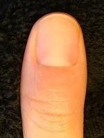 深爪が治るだけでなく指先も変化する! 深爪自立矯正変化画像