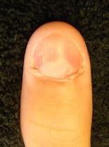 きれいに変身する深爪自立矯正の魅力とは…