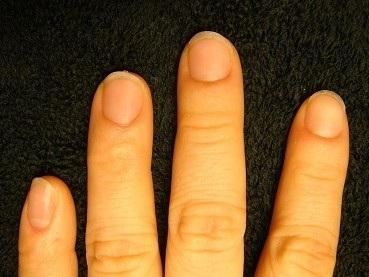 噛み爪を綺麗にするカイナメソッドの深爪自立矯正