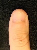 爪を綺麗に伸ばしたいなら差が出る深爪自立矯正