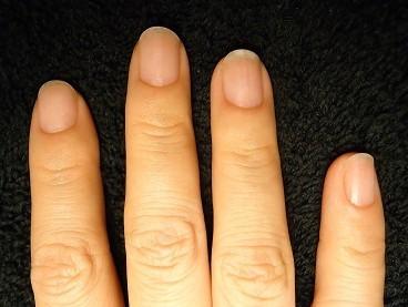 縦線が入った爪を綺麗な自爪に治そう