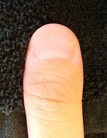 男性の深爪自立矯正