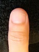深爪自立矯正の効果はいかに?