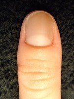 見て実感!深爪自立矯正の結果 爪噛み