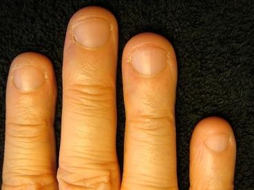 男性のお客様の深爪矯正の結果