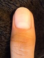 爪の病気の爪のガタガタ・デコボコを矯正