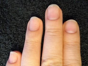 見て実感の深爪矯正